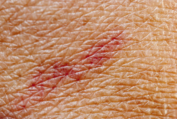 What causes a rash?