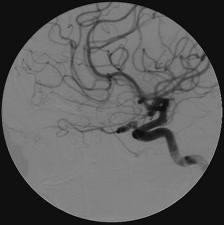 I have a 4mm superior/medial un-ruptured aneurysm on my ophthalmic artery. Is there any research on life- expectancy post-op? Considering monitoring..