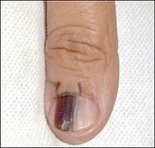 Black line in fingernail thumb - Answers on HealthTap