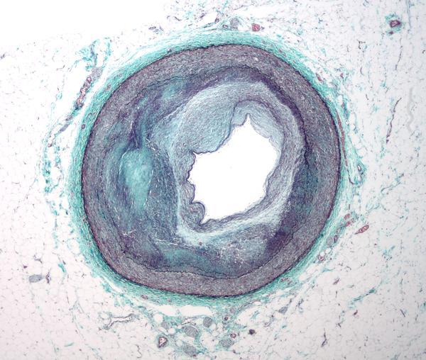 What is plaque buildup in arteries?