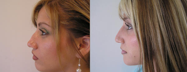 Who is the best revision rhinoplasty surgeon in southern california area?