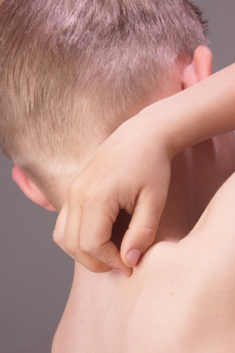 What can I do for my child's eczema?