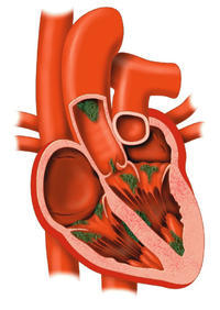 What kinds of bacteria cause endocarditis?