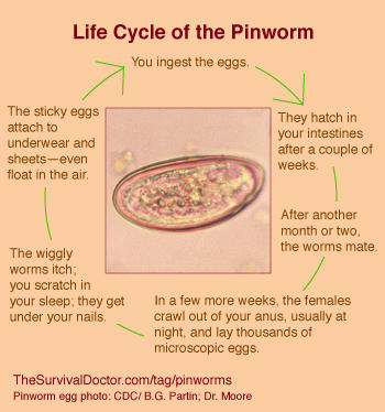 What will happen if you don't treat pinworm?