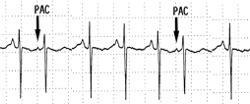 Neg echo stress, neg ekg. Holter monitor results 1,000 PACS Dr says benign. Worried about a blockage. Do I need an angio MRI? Very stressed