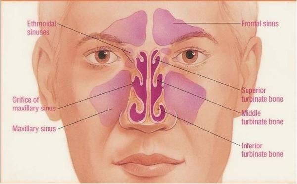 What is bilaterlal maxillary sinusitis?