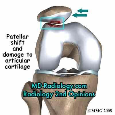 Is it reasonable that a child dislocate both kneecaps and doesn't realized until knee pain as a teen and MRI shows scarred cartilage?