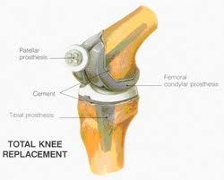 Can one let me know about complete knee replacement and risks?