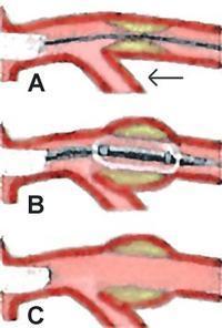 What is the arteriogram procedure like?