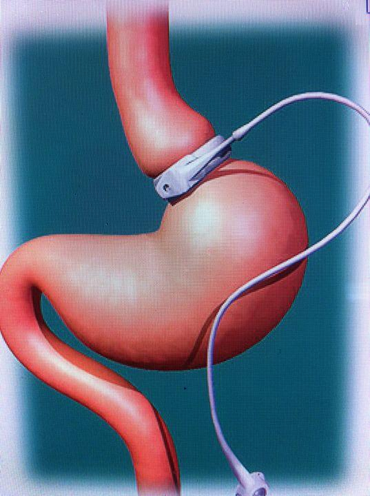 What is recovery time for gastric banding surgery?