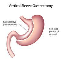 What is a vertical sleeve gastrectomy?
