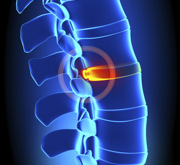 What are some natural remedies for pain caused by spinal disc herniation ?
