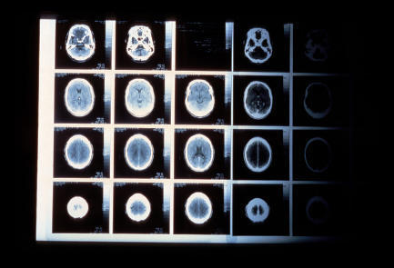 What can a CT scan show?