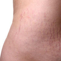 What is the best method to remove stretch marks or at least make them not noticeable (once they're already silverish)? Does laser really work?