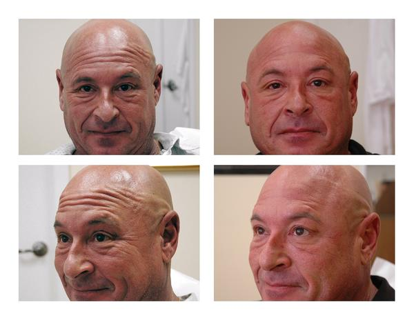 What is the name of a pre-eminent facial plastic surgeon at the U. of Miami hospital system in downtown Miami (want to rid  static forehead lines)?