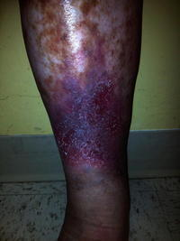 What can someone do to treat phlebitis?