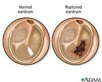 What do you feel if you rupture an eardrum?