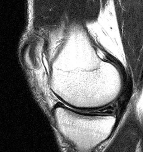 What is small focus of type 1 intrameniscal signal within the posterior horn of the medial mensicus? What does it mean for a college in-season athlete?