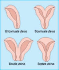 Can a bicornuate uterus be a cause of dysmenorrhea? I've always had severe cramps, got checked out & the only thing they found was bicornuate uterus.
