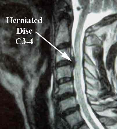 C5 herniated disk with pinched nerve. How long does it usually take to recover if take PT 3x's wk. and recommended meds?