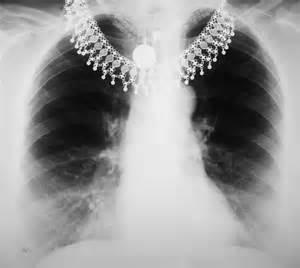An x-ray revealed a light shadow at the base of the right lung.  What does this mean?  Thanks!