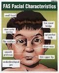 How does fetal alcohol syndrome appear in toddlers and school age children?