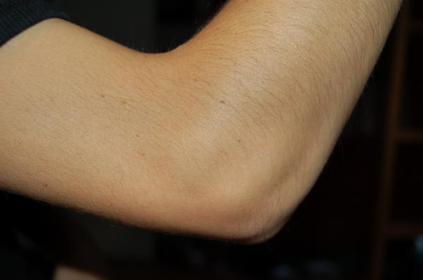 What do I do for elbow pain?