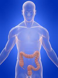 Diagnosed with diverticulosis- what is the difference between this and diverticulitis?