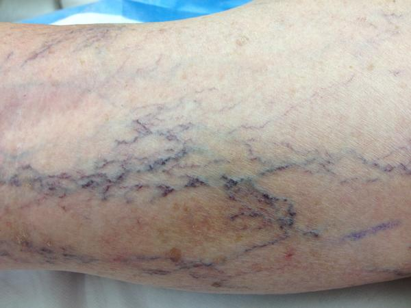 Do I need to be worried about a superficial vein bursting?