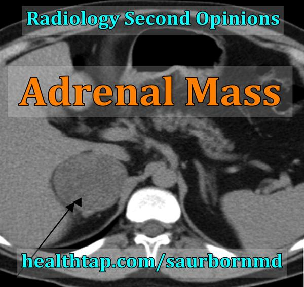 Is it rude to call my doctor to ask for an MRI instead of an ultrasound to look for an adrenal tumour? Already had an u/s last year. Waste of time