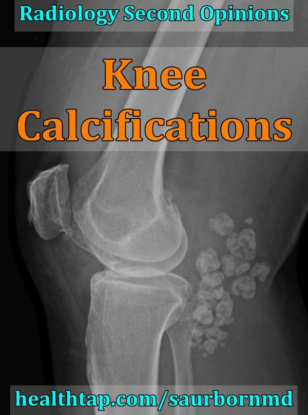 Persistent posterior knee curvilinear calcification and anterior knee preps teller sub centimeter opacities are noted. What does this mean?