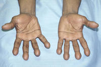 What is the most common cause of clubbing nails with shortness of breath, chest pain, high heart rate?