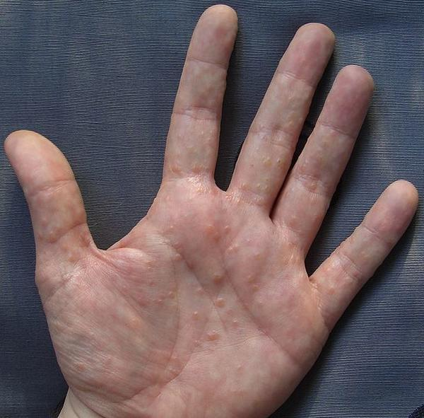 tiny bumps on hands need diagnosis. . Thread discussing ...