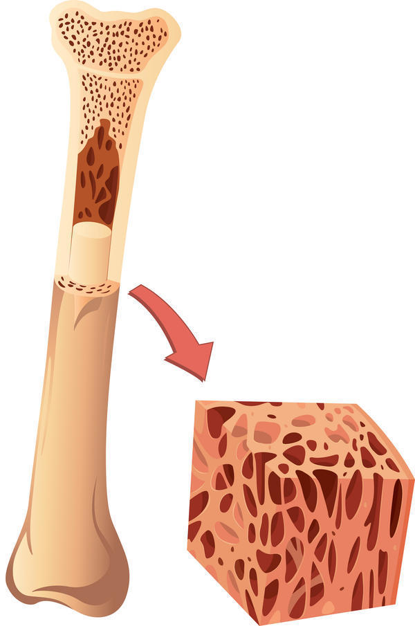 Could a bone marrow biopsy in the left hip leave you will hip pain or problems after?