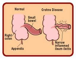 Had a crohns flare up a week ago. Feeling better but I went from bad diarrhea beginning of week to constipation. I go but never complete 5 today. Bad?