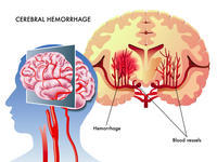What is the difference between an aneurysm and a hemorrhagic stroke?