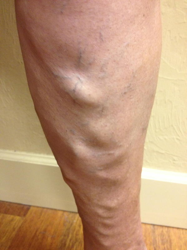 Vein in penis enlarged