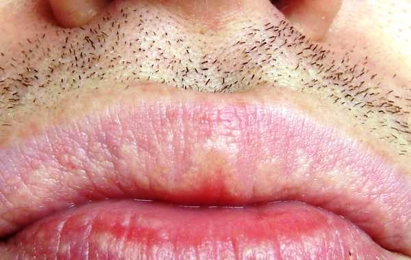 What r fordyce spots??? How can they b treated when they r on the lip??? R they harmful?? How common r they????