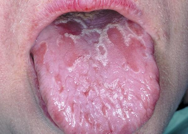 My tongue cycles between having white patches that become orange. It is also inflammed. Antifungals/antimicrobials do not treat it. Help?