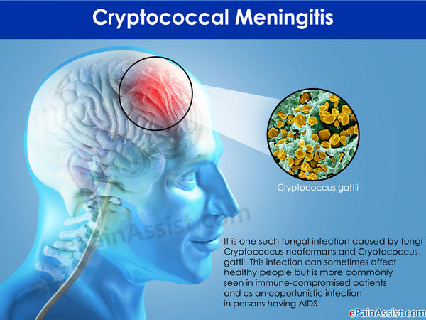 Can cryptococcal meningitis be detected with a brain MRI without contrast?