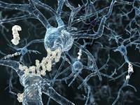 Can myasthenia gravis cause myopathy?