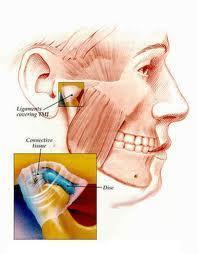 How can I treat this:I keep moving my jaw laterally daytime unintended  until something pops out in the TMJ, it hurts and sounds like sand afterwards.