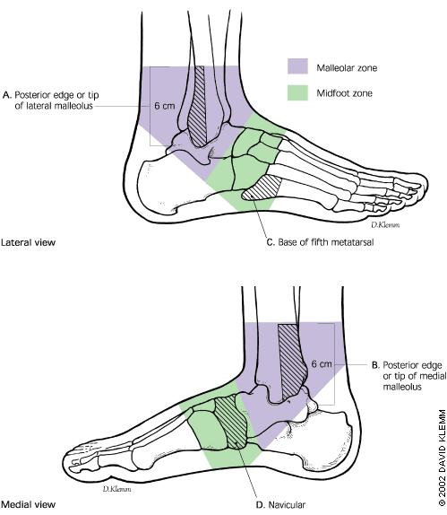 What is the standard treatment for a toddler with a buckle fracture of the 5th metatarsal?  Fracture is on the end closest to the ankle.