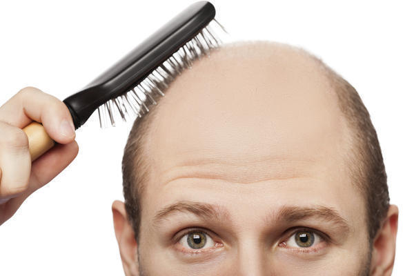 What are some medical causes of baldness in males?