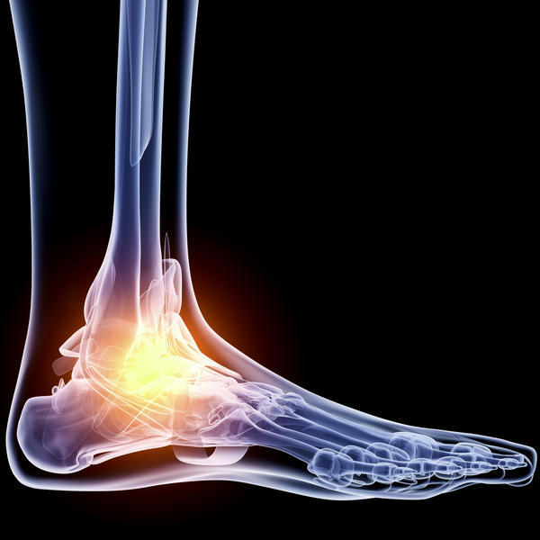 What Does It Mean If Your Ankle Is Swollen - Doctor -5322