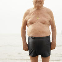 Are all man boobs called gynecomastia? Can you share some sources?