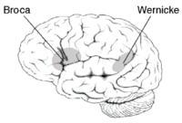 What is Wernicke's aphasia?