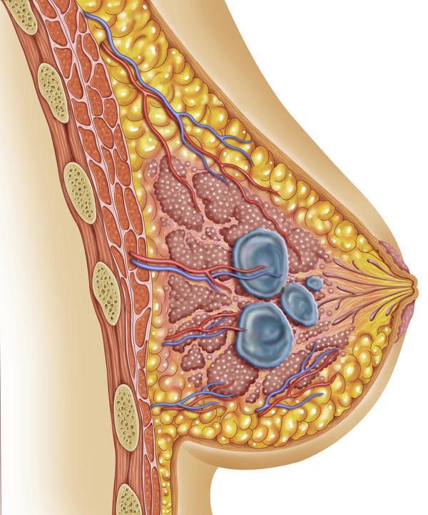 What is a complex breast cyst, and why would an aspiration, and core needle biopsy be recommended?