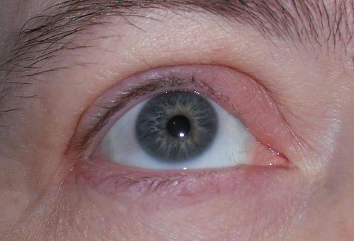 Dry Scaly Eyelids - LoveToKnow