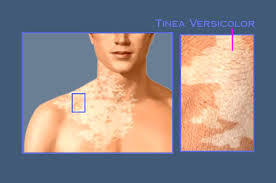 I left selsun blue on my affected tinea versicolor areas overnight and it appears to have left me with a burn! Help!